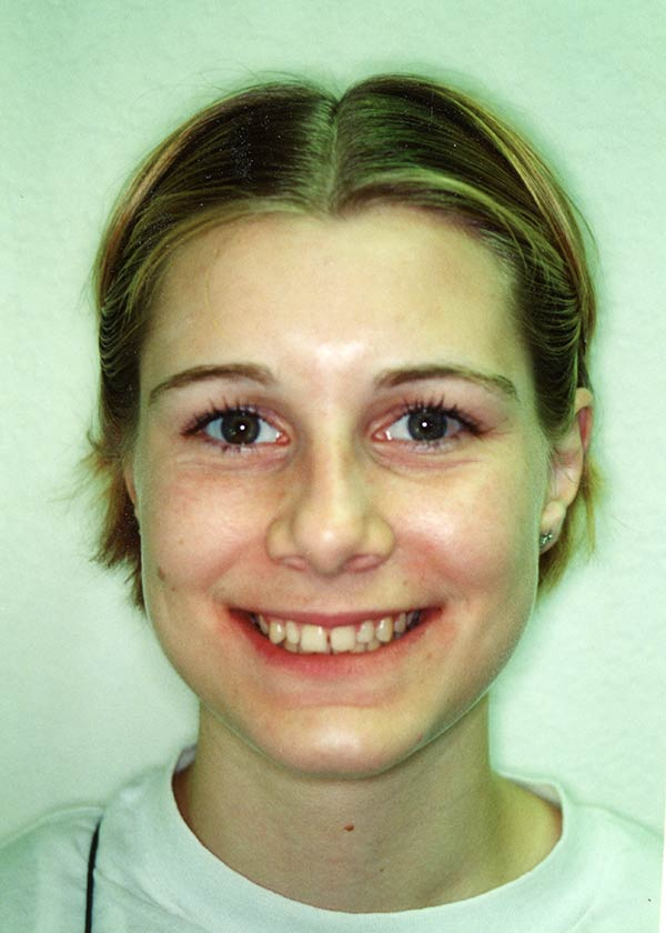 After orthodontics image of a girl at Gary R. Templeman, DDS.