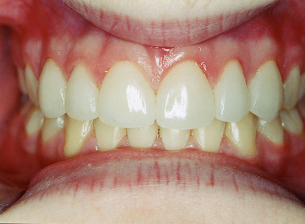 After veneers front teeth of a girl at Gary R. Templeman, DDS.