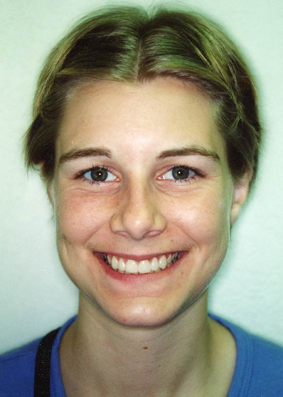 After veneers image of a girl at Gary R. Templeman, DDS.